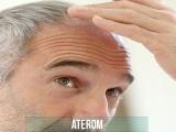 ATEROM (